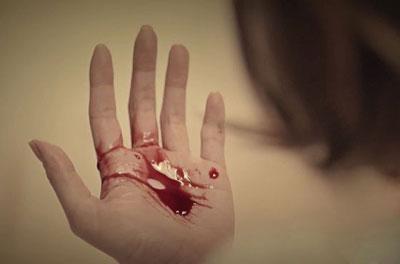 Почему бывает рвота с кровью и как помочь