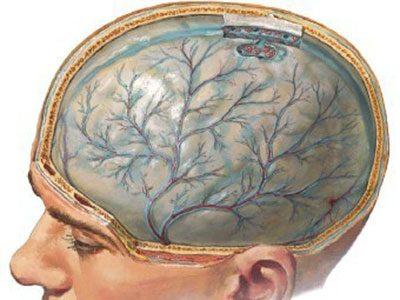 Мозг при токсической энцефалопатии