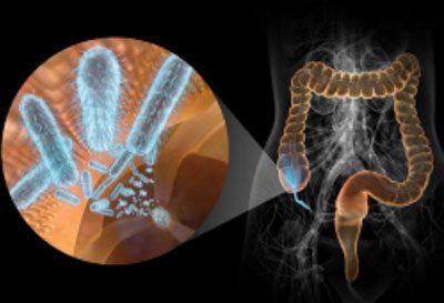 Инфекция в кишечнике
