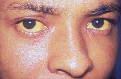Проявление печеночной энцефалопатии