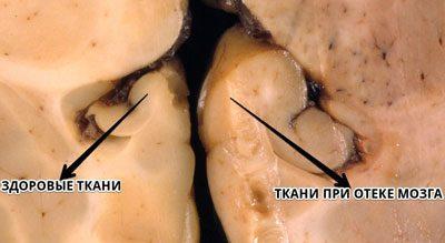 Ткани при отеке головного мозга