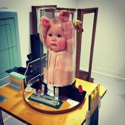 рентген детям