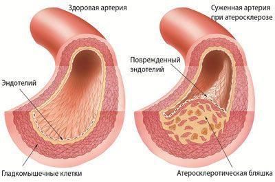 Проявление атеросклероза
