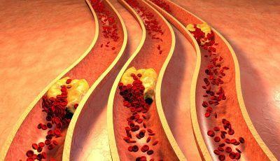 препятствует развитию тромбов