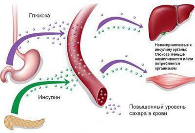 Глюкоза и сахарный диабет