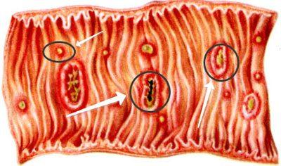 Прогрессирование амебиоза в кишечнике