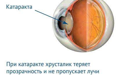 Проявление катаракты