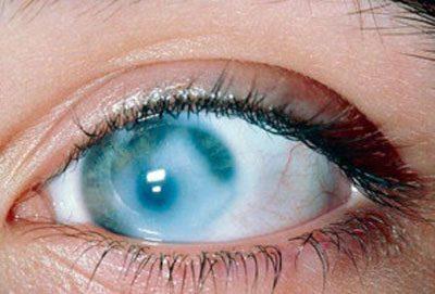 Слепота при отравлении