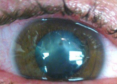 Глаз при отравлении мышьяком