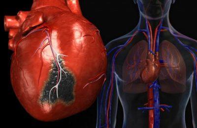 инфаркте миокарда