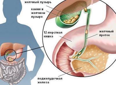 Желчекаменная болезнь