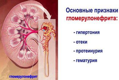 Признаки гломерулонефрита