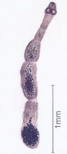 Alveokokk-132x300.jpg