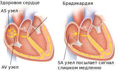 Проявление брадикардии