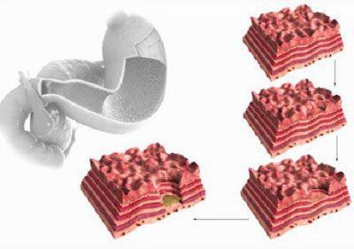 Открытая язва желудка