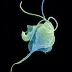 Dlitelnost-skrytogo-perioda-trihomoniaza-150x150.png