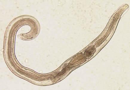 Enterobius-vermicularis.jpg