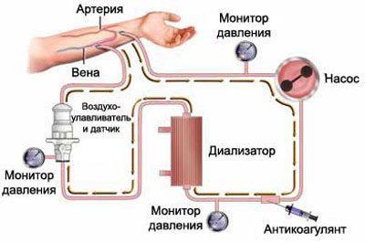 Система гемодиализа