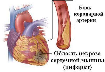 Проявления инфаркта