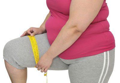 Ожирение у женщины
