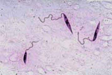 Leishmania-braziliensis1.jpg
