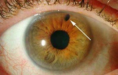 Проявление глаукомы