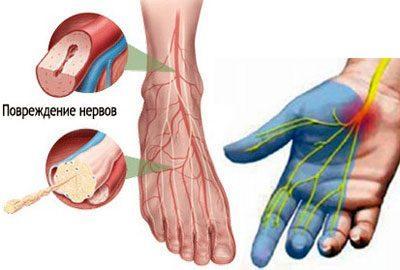 Последствие полинейропатии