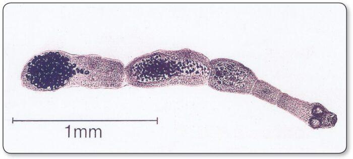 Prichiny-ehinokokkoza-pecheni.jpg