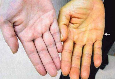 Пожелтевшая кожа руки