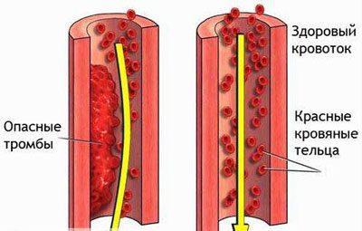 Возникновение тромба