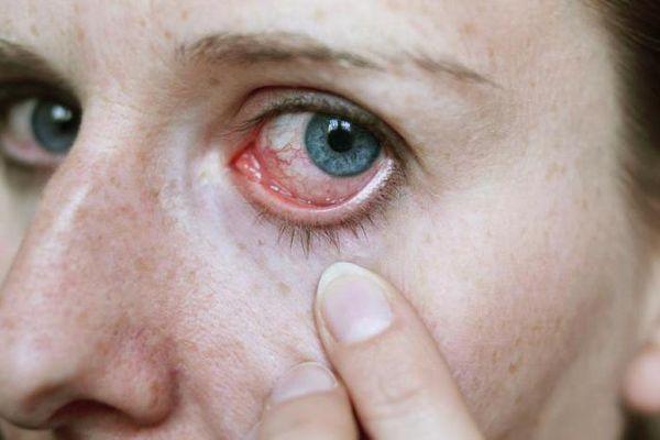 Simptomyi-poyavleniya-glistov-v-glazah.jpg