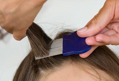 Вычесывание волос при педикулезе