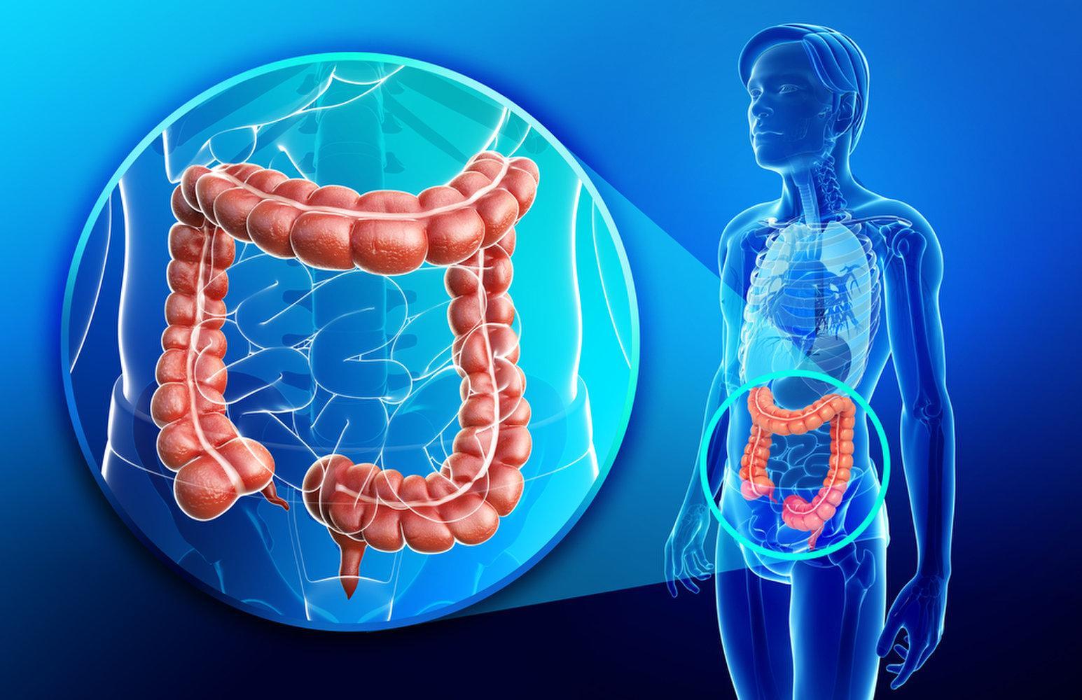 Зашлакованность кишечника