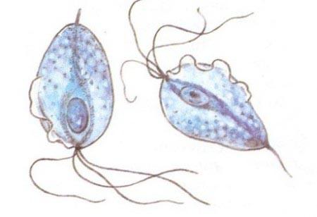 Trichomonas-vaginal.jpg