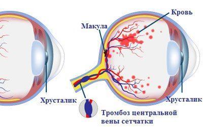 Тромбоз вены сетчатки