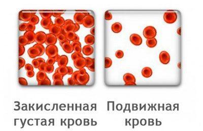 Кровь при ацидозе