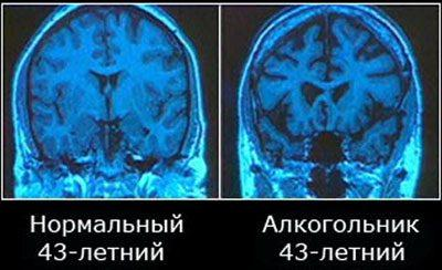 Головной мозг алкоголика