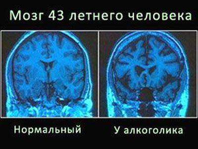 Мозг у алкоголика