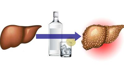 Какое влияние оказывает алкоголь на печень