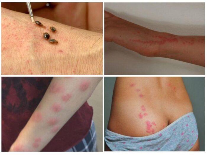 allergija-ukusy.jpg