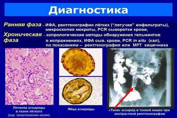 analiz-na-askaridy332.jpg