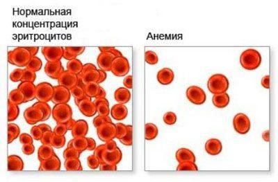 Кровь при анемии
