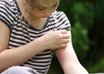 Укус на руке ребенка