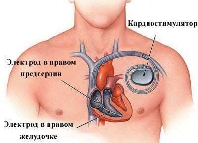 Кардиостимулятор в организме