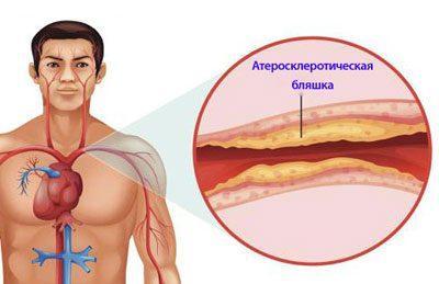 Признак атеросклероза