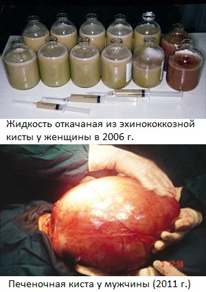 bolshaya_kista_ehinokokka.jpg