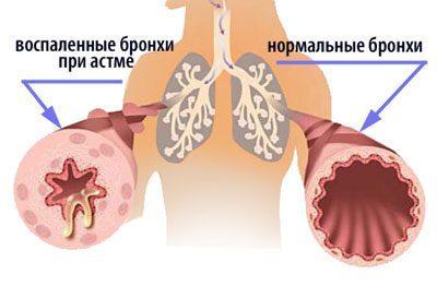 Бронхи при астме