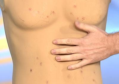 Особенности развития и протекания брюшного тифа