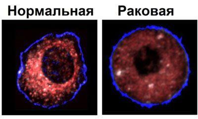 Нормальная и раковая клетки