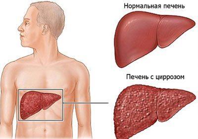 Изменения в печени при циррозе
